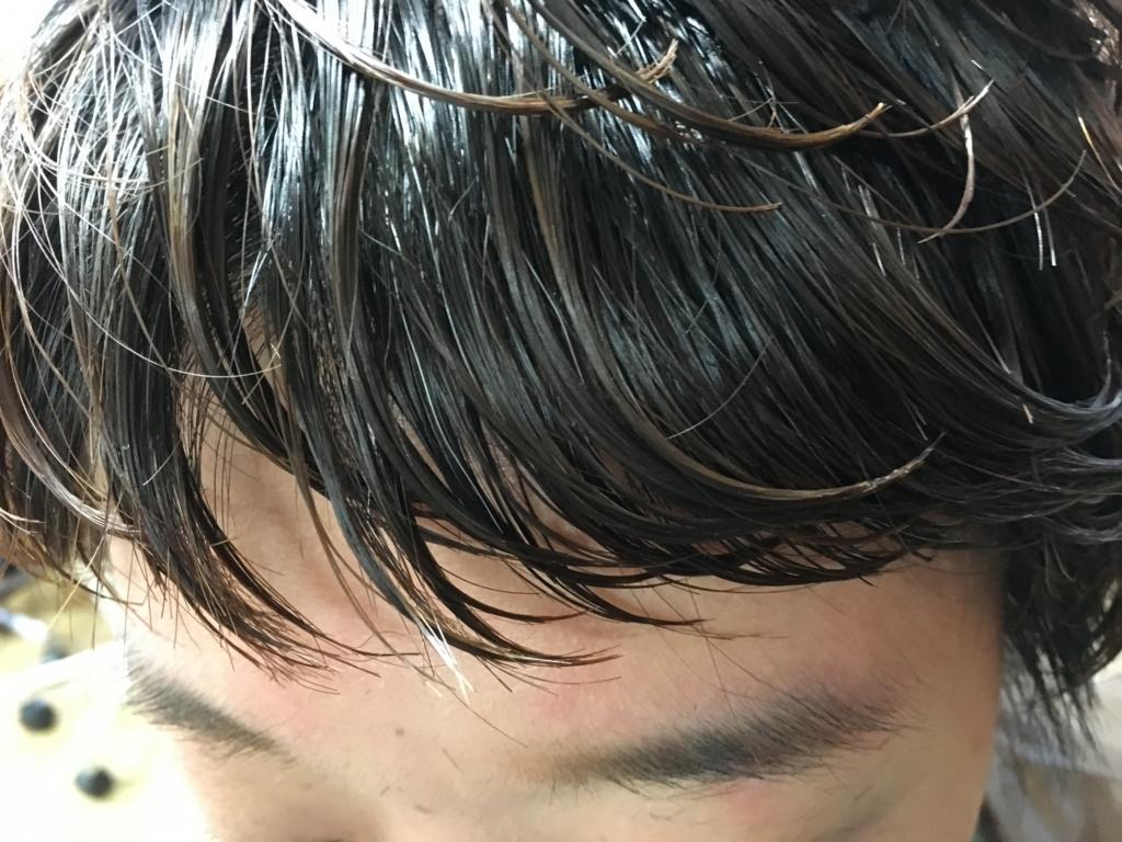 f:id:shinichi5:20151124165230j:plain