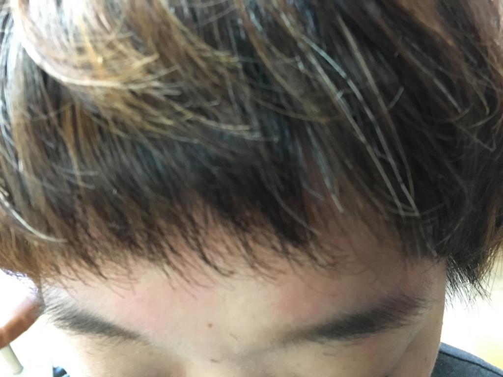 f:id:shinichi5:20151124165258j:plain